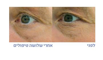 שיפור מרקם העור - לפני אחרי